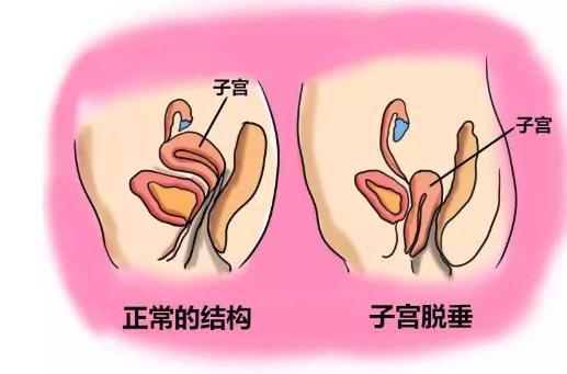 子宫脱垂可以发生在任何年龄的女性身上