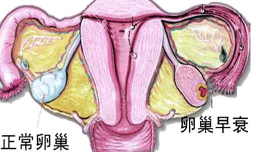女性应该怎么治疗卵巢早衰?