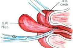 白城宫颈息肉有哪些症状?